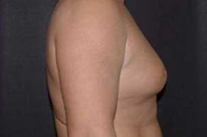 Before-Ginecomastia