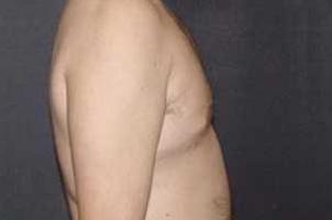 After-Ginecomastia