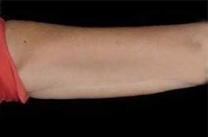 After-Lifting braccia