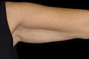 Before-Lifting braccia