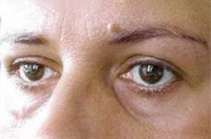 Before-Lipofilling