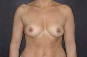 Before-Mastoplastica Additiva